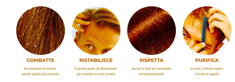 Come funziona pro hair 10 antiforfora