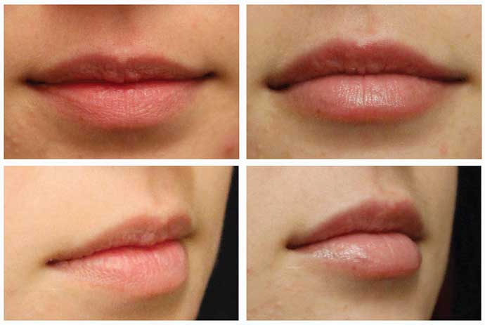 Labbra volumizzate con filler