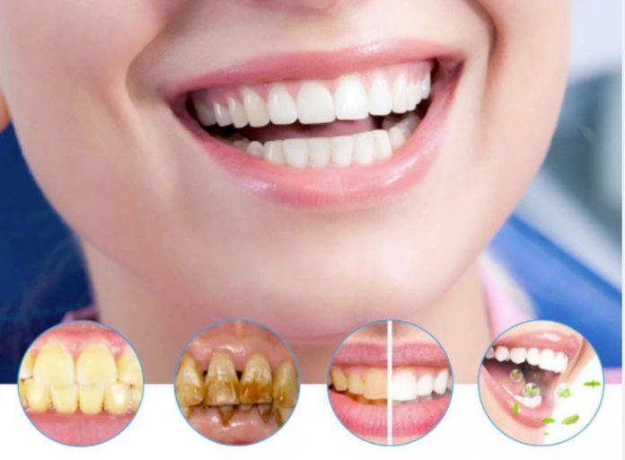 Extrabianco kit per sbiancare i denti