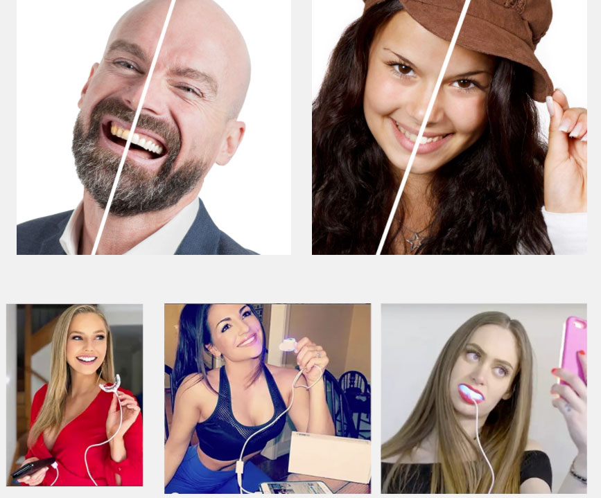 Opinioni su Extrabianco kit per denti