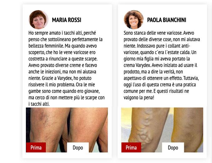 Recensioni delle clienti su Varidex crema per vene varicose